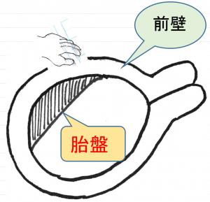 04】妊娠後期: ₀₇₎骨盤位(逆子)と外回転術 – 【飯能産婦人 ...
